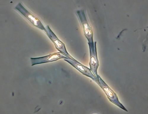 Dinobryon Reija peilikuva